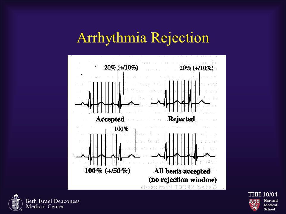 Arrhythmia Rejection