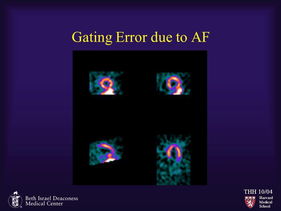 Gating Error due to AF