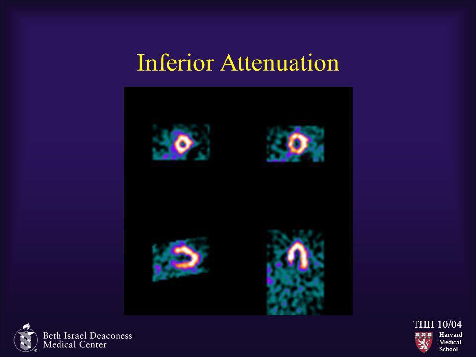 Inferior Attenuation