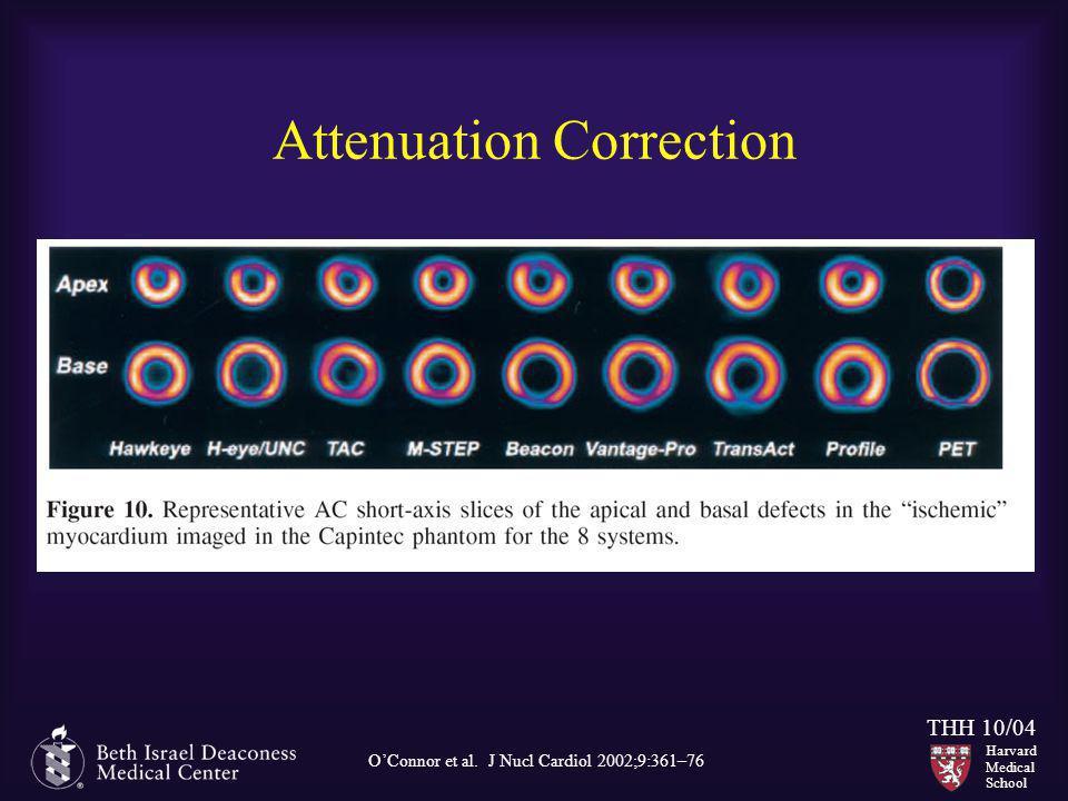 Attenuation Correction