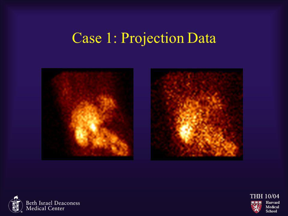 Case 1: Projection Data