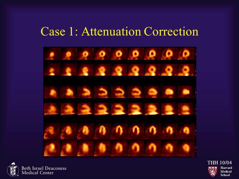 Case 1: Attenuation Correction