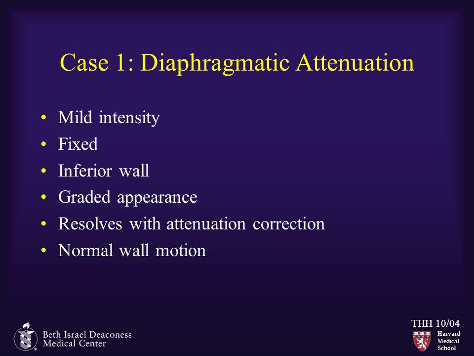 Case 1: Diaphragmatic Attenuation