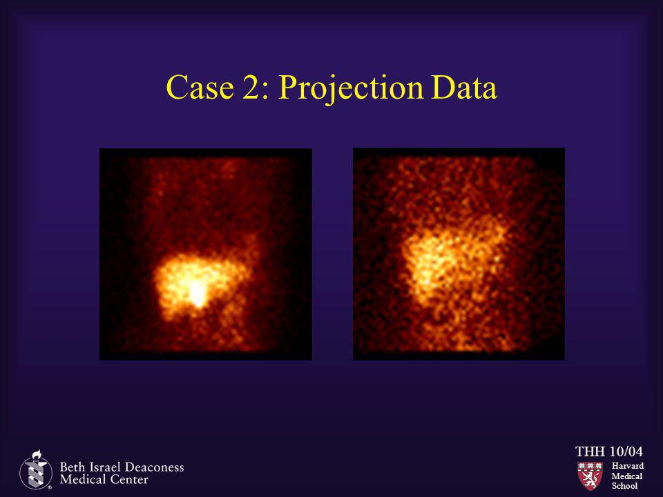 Case 2: Projection Data