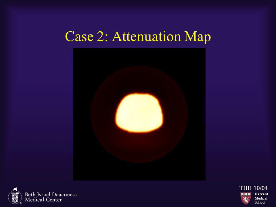 Case 2: Attenuation Map