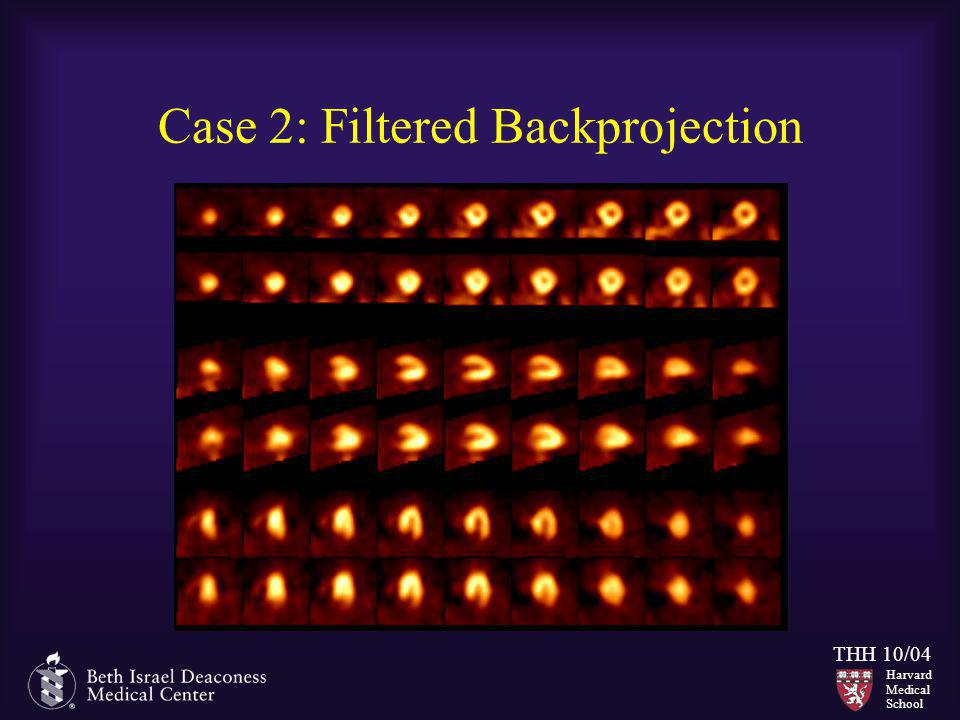 Case 2: Filtered Backprojection