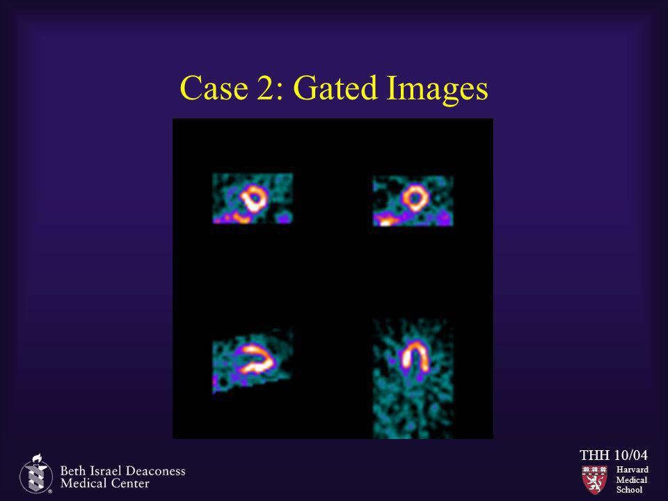 Case 2: Gated Images