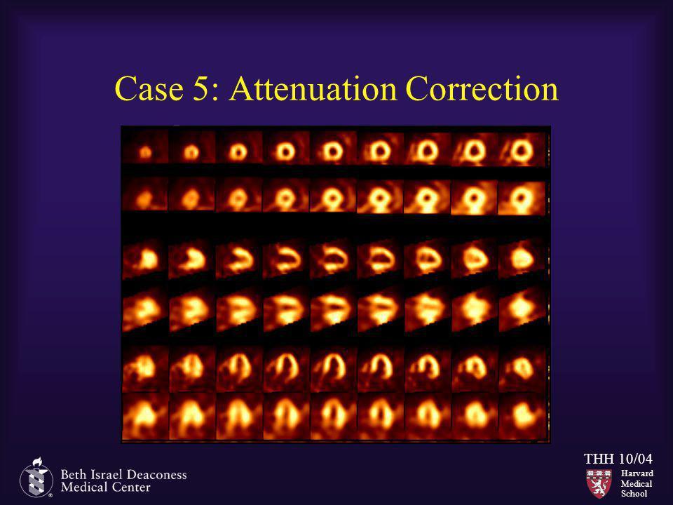 Case 5: Attenuation Correction