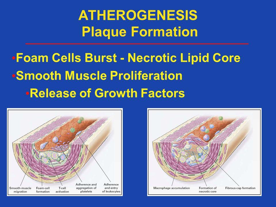 ATHEROGENESIS Plaque Formation