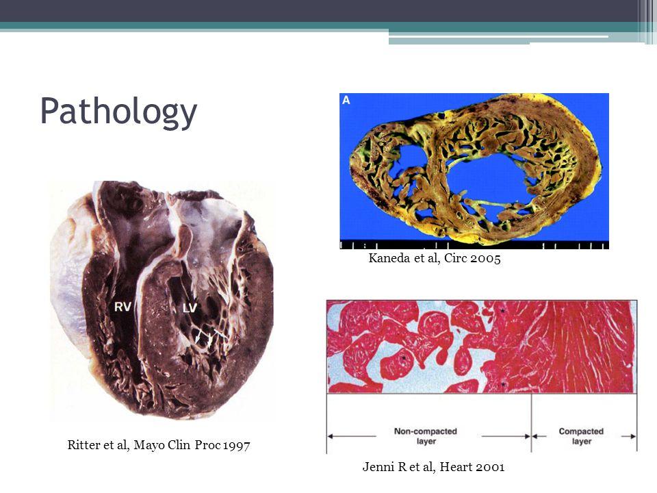 Pathology Kaneda et al, Circ 2005 Ritter et al, Mayo Clin Proc 1997