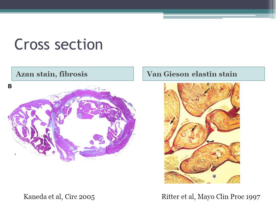 Cross section Azan stain, fibrosis Van Gieson elastin stain