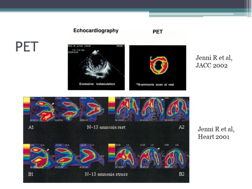 PET Jenni R et al, JACC 2002 Jenni R et al, Heart 2001
