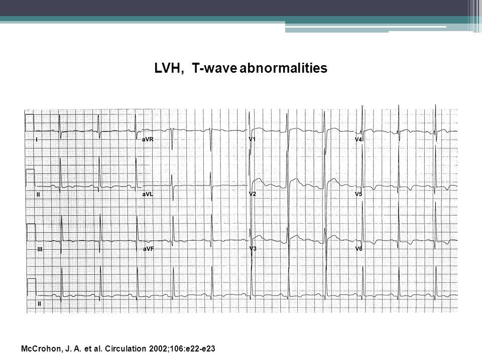 LVH, T-wave abnormalities
