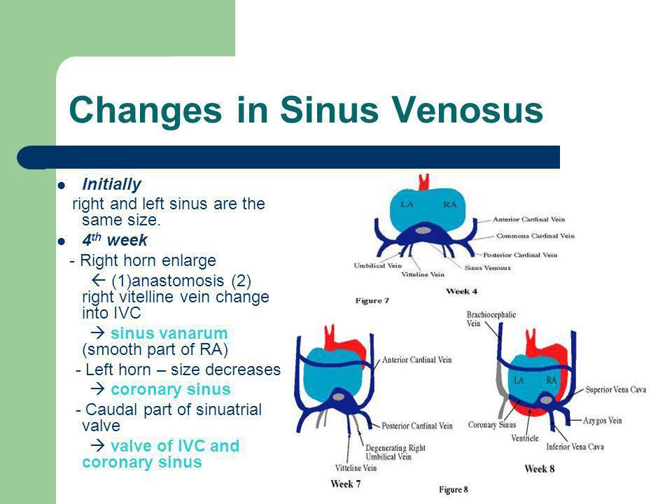 Changes in Sinus Venosus