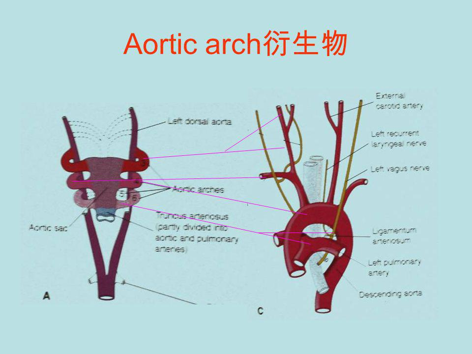 Aortic arch衍生物
