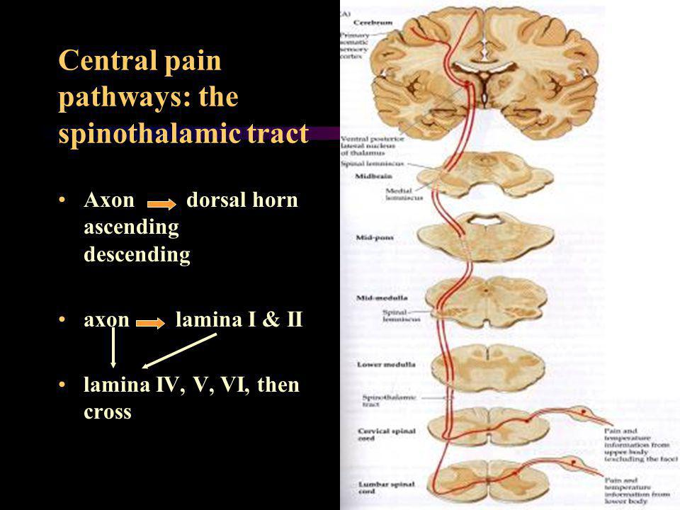Central pain pathways: the spinothalamic tract