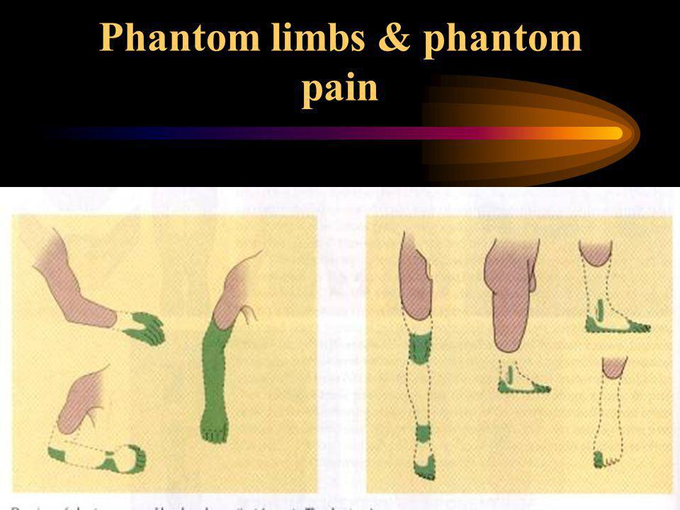 Phantom limbs & phantom pain
