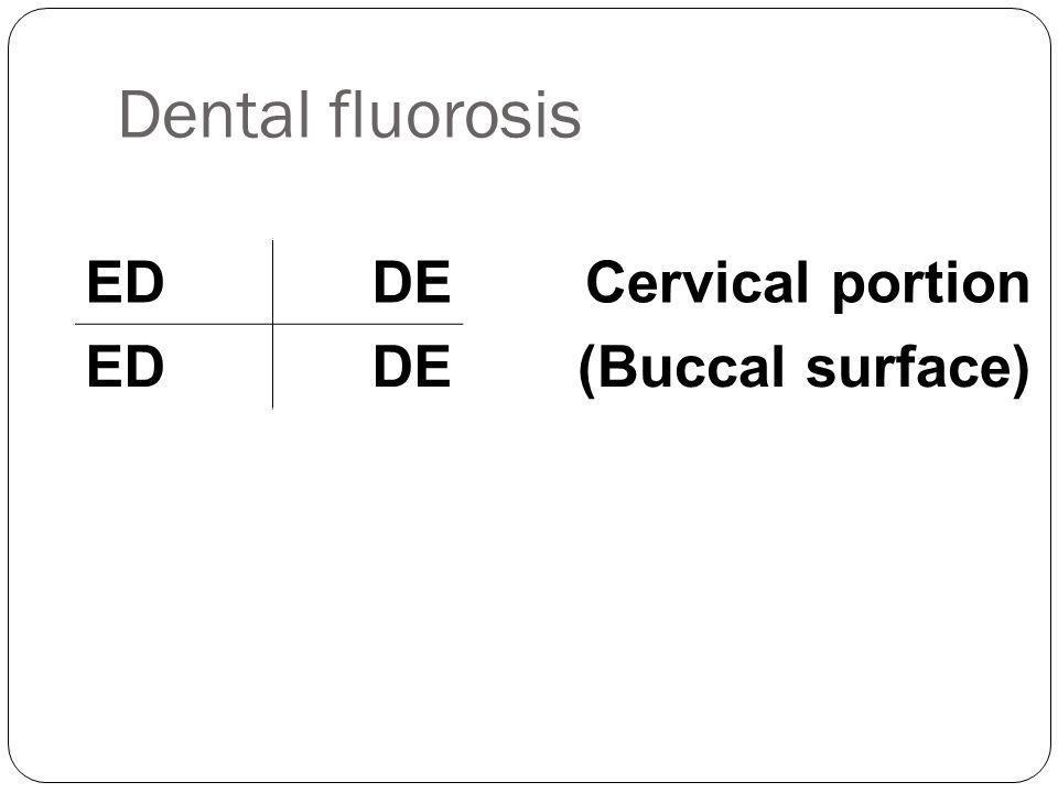 Dental fluorosis ED DE Cervical portion (Buccal surface)