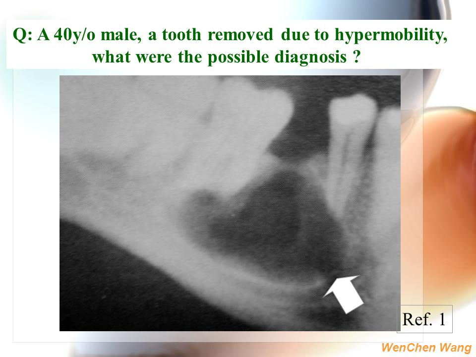 Q: A 40y/o male, a tooth removed due to hypermobility,