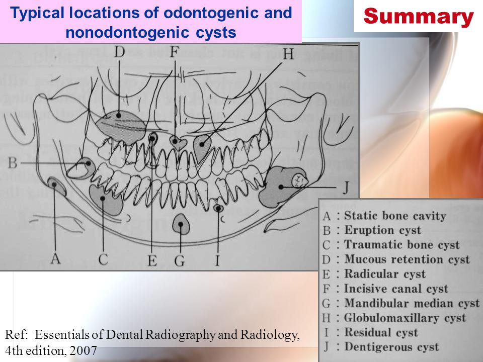 Typical locations of odontogenic and