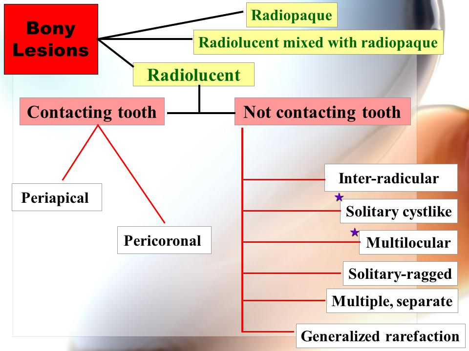 Radiolucent mixed with radiopaque Generalized rarefaction