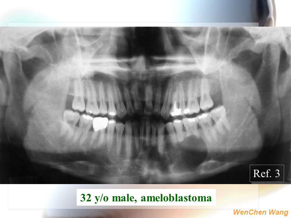 32 y/o male, ameloblastoma