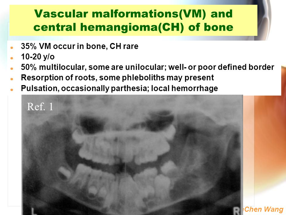 Vascular malformations(VM) and central hemangioma(CH) of bone