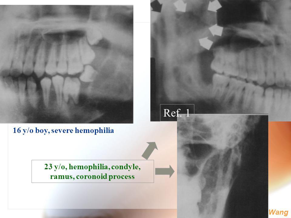 Ref. 1 16 y/o boy, severe hemophilia
