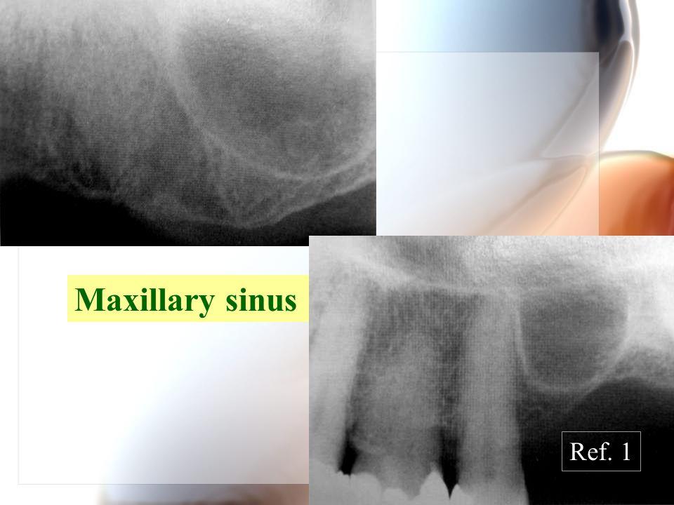 Maxillary sinus Ref. 1