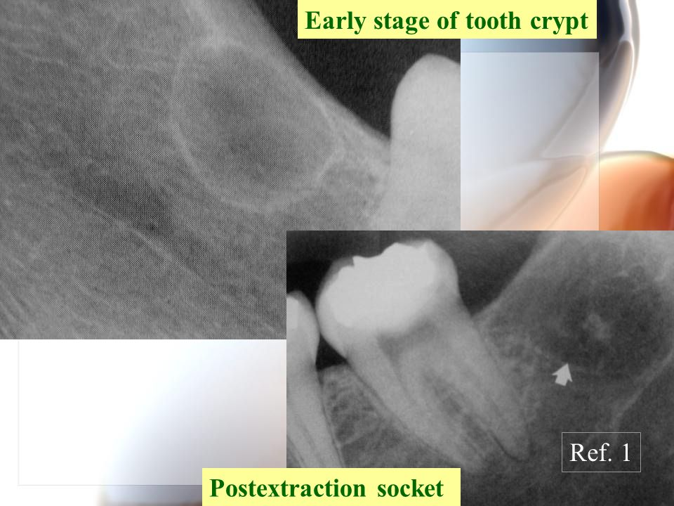 Early stage of tooth crypt