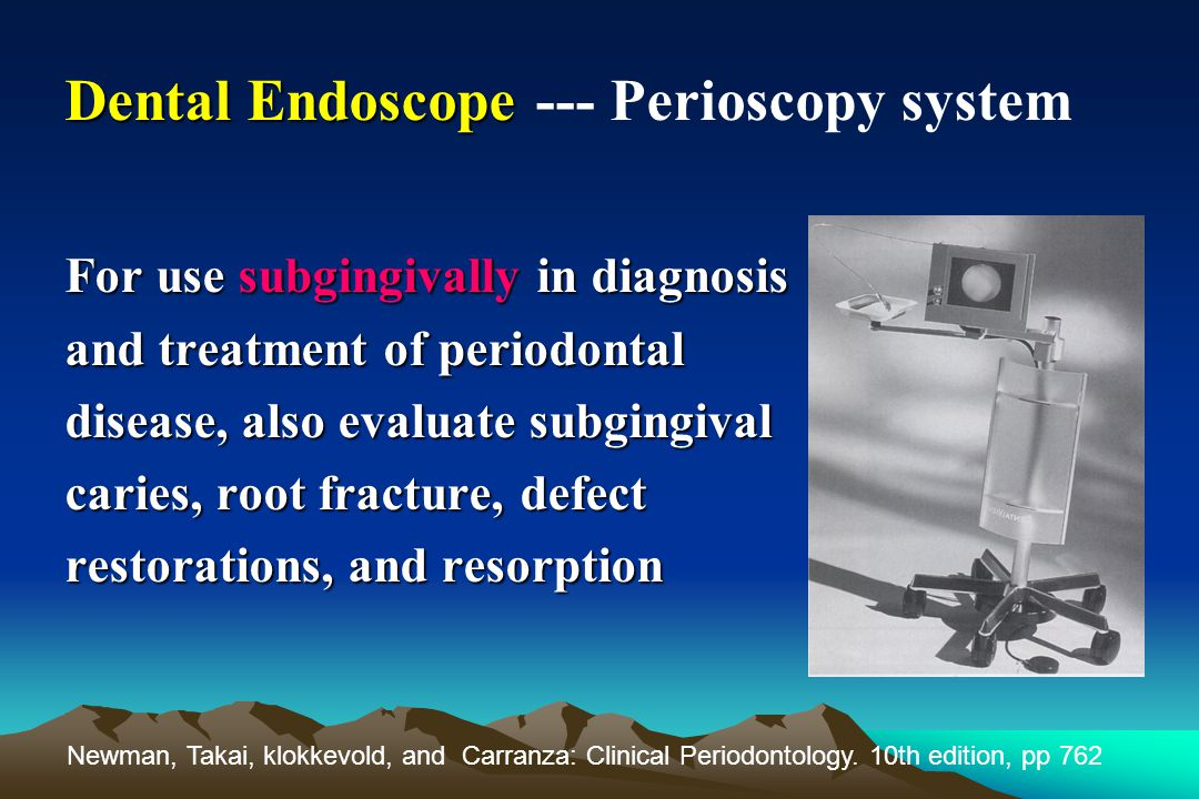 Dental Endoscope --- Perioscopy system