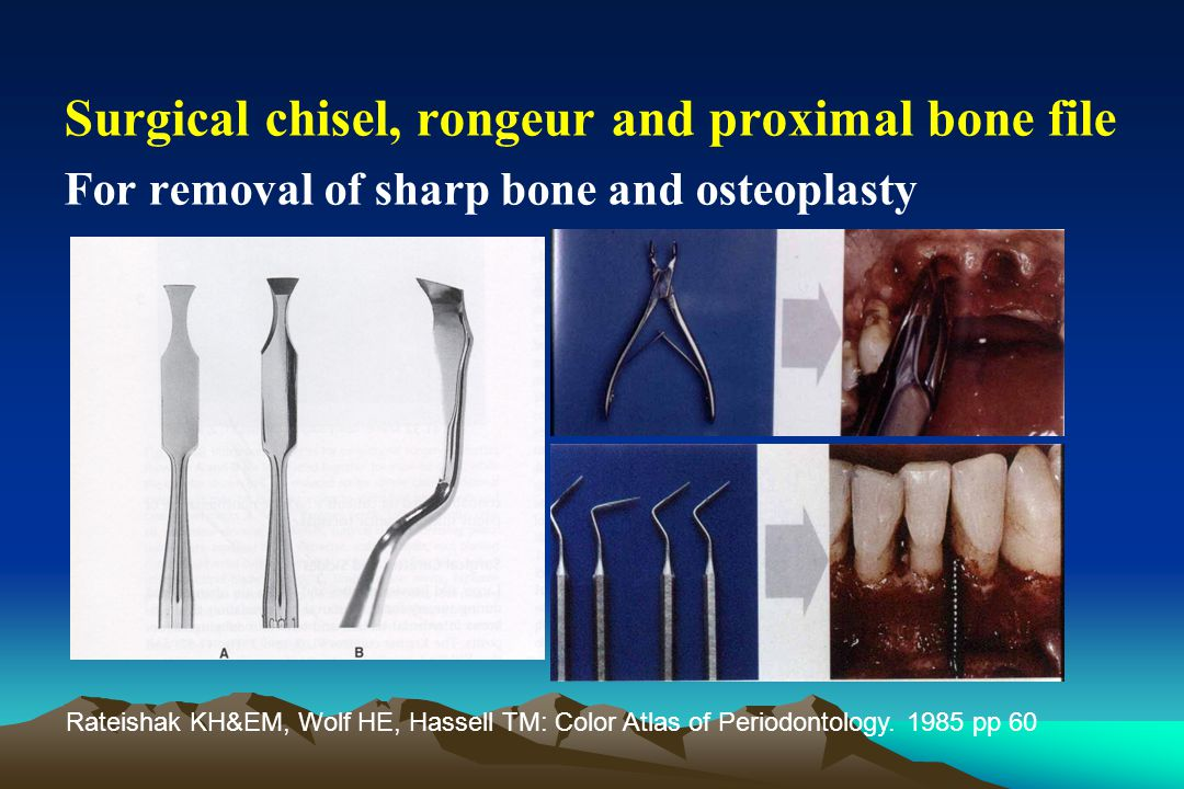Surgical chisel, rongeur and proximal bone file