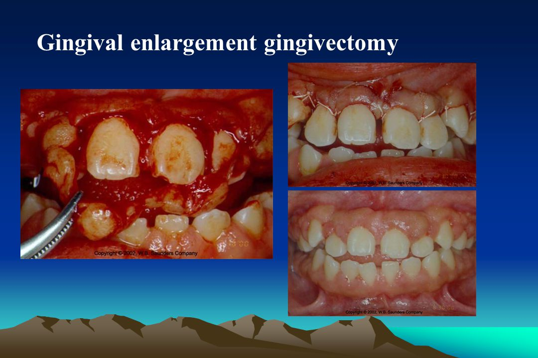 Gingival enlargement gingivectomy