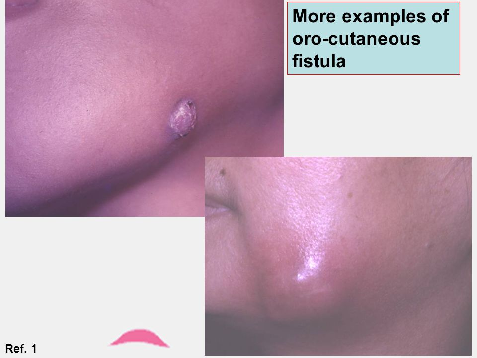 More examples of oro-cutaneous fistula Ref. 1
