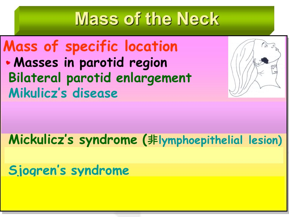 Mass of the Neck Mass of specific location Masses in parotid region