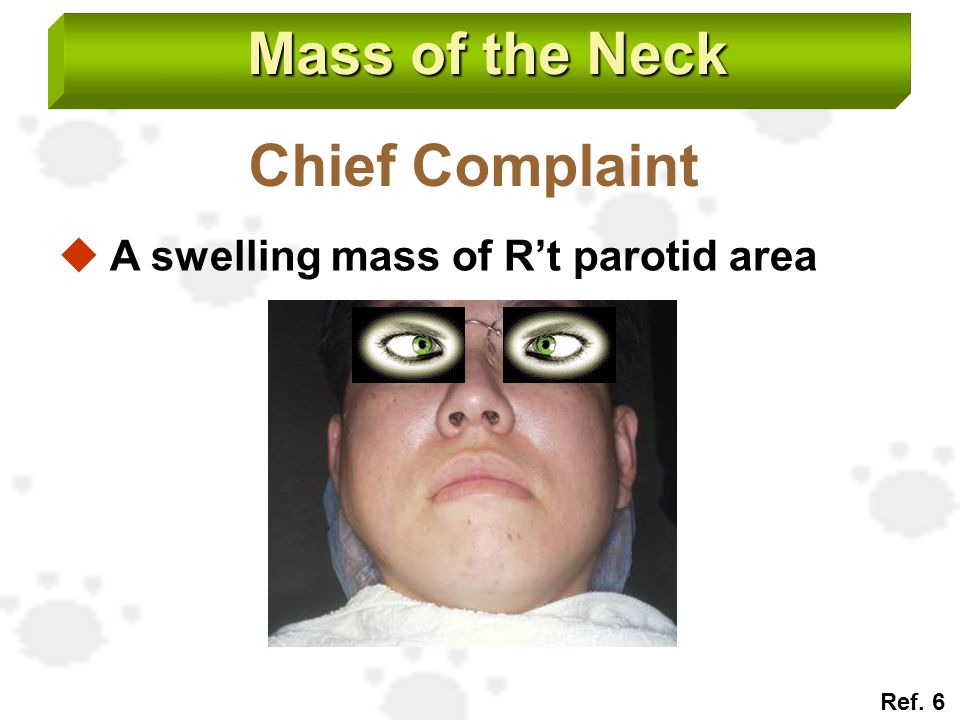 Mass of the Neck Chief Complaint