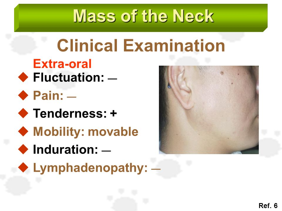 Mass of the Neck Clinical Examination