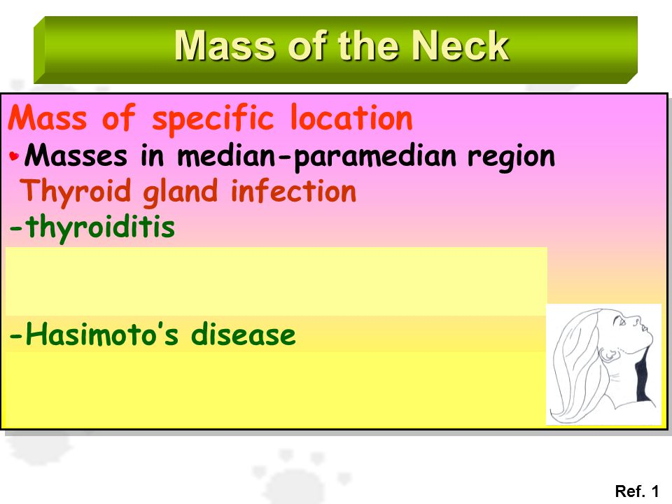 Mass of the Neck Mass of specific location