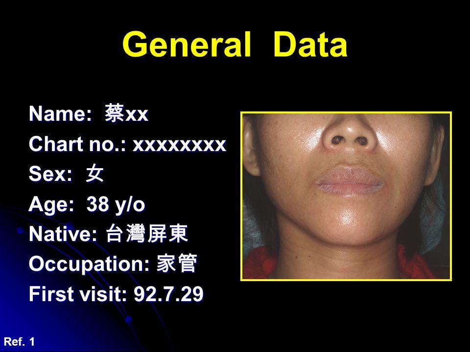 General Data Name: 蔡xx Chart no.: xxxxxxxx Sex: 女 Age: 38 y/o