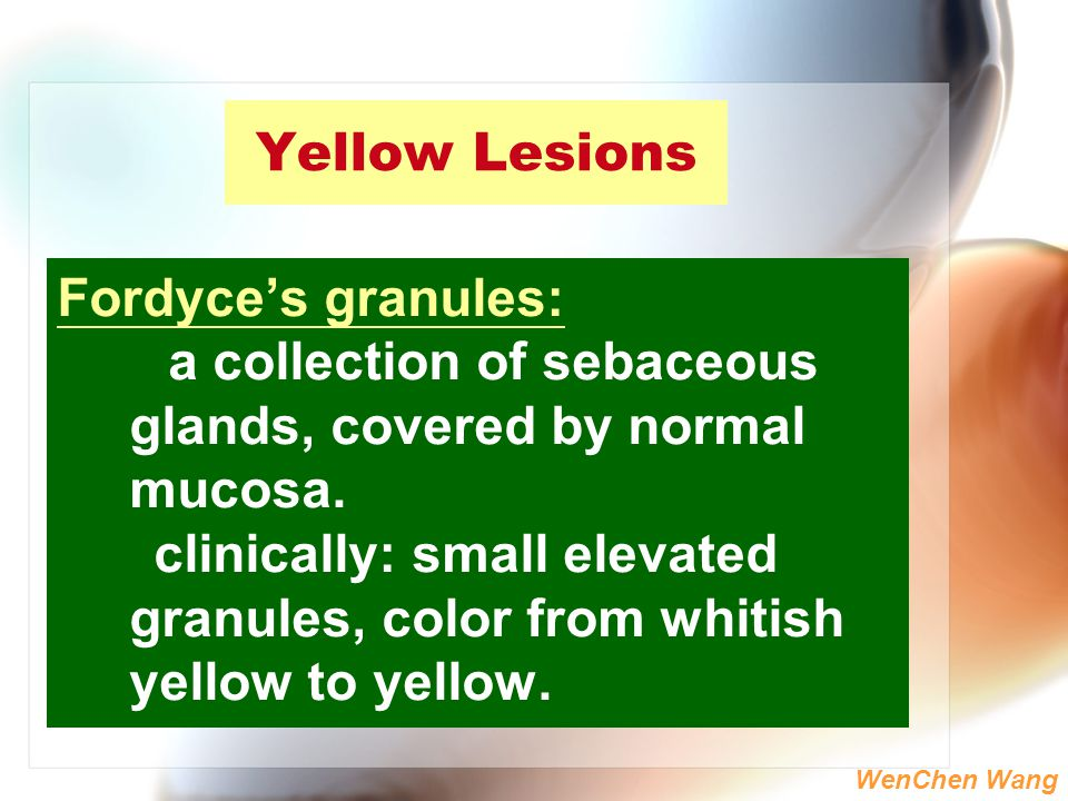 Yellow Lesions Fordyce's granules: a collection of sebaceous glands, covered by normal mucosa.
