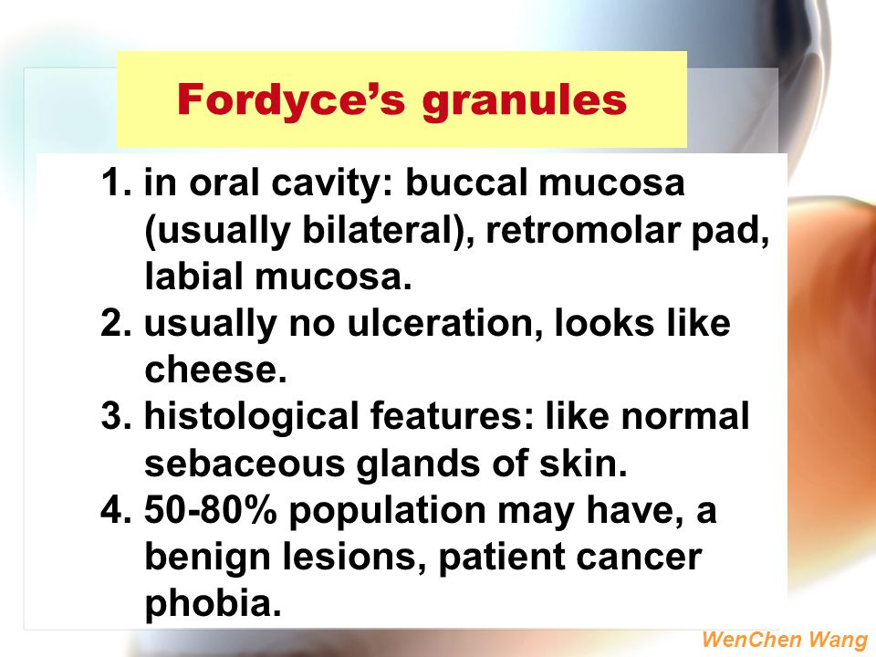 Fordyce's granules 1. in oral cavity: buccal mucosa (usually bilateral), retromolar pad, labial mucosa.