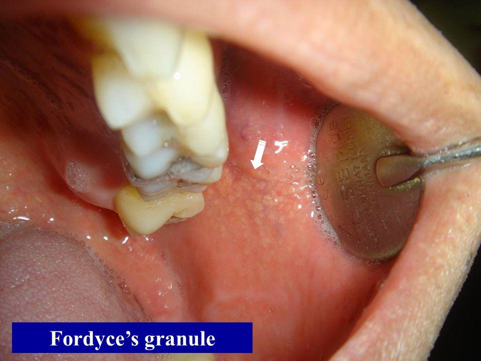 Fordyce's granule