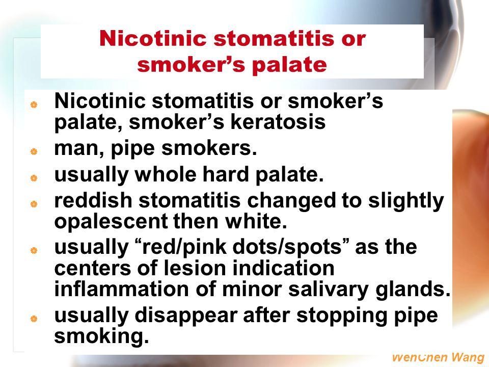 Nicotinic stomatitis or smoker's palate