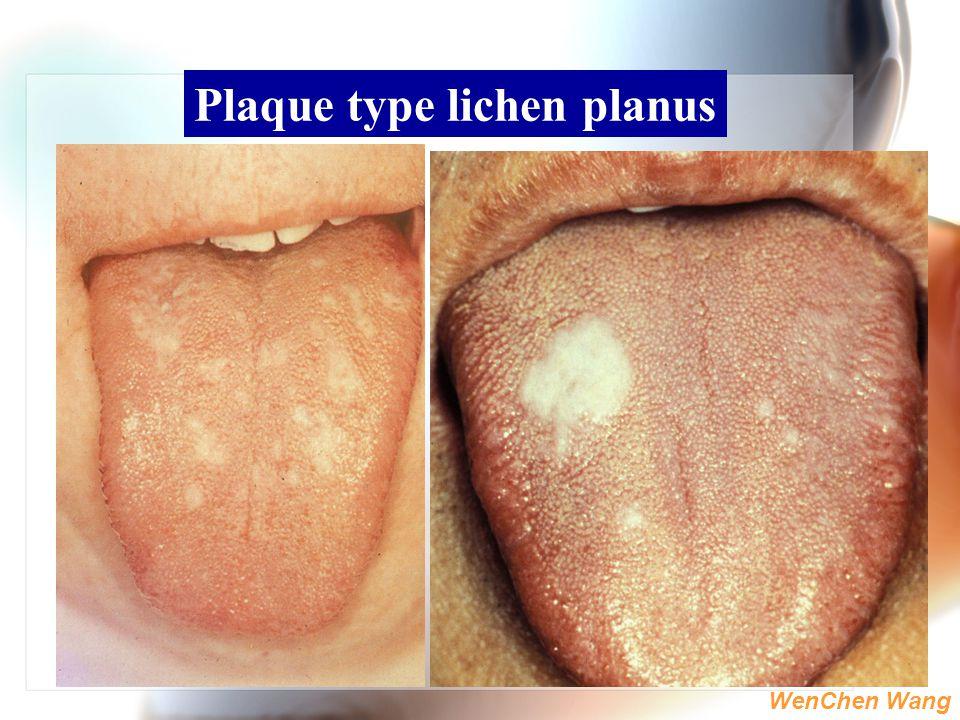Plaque type lichen planus