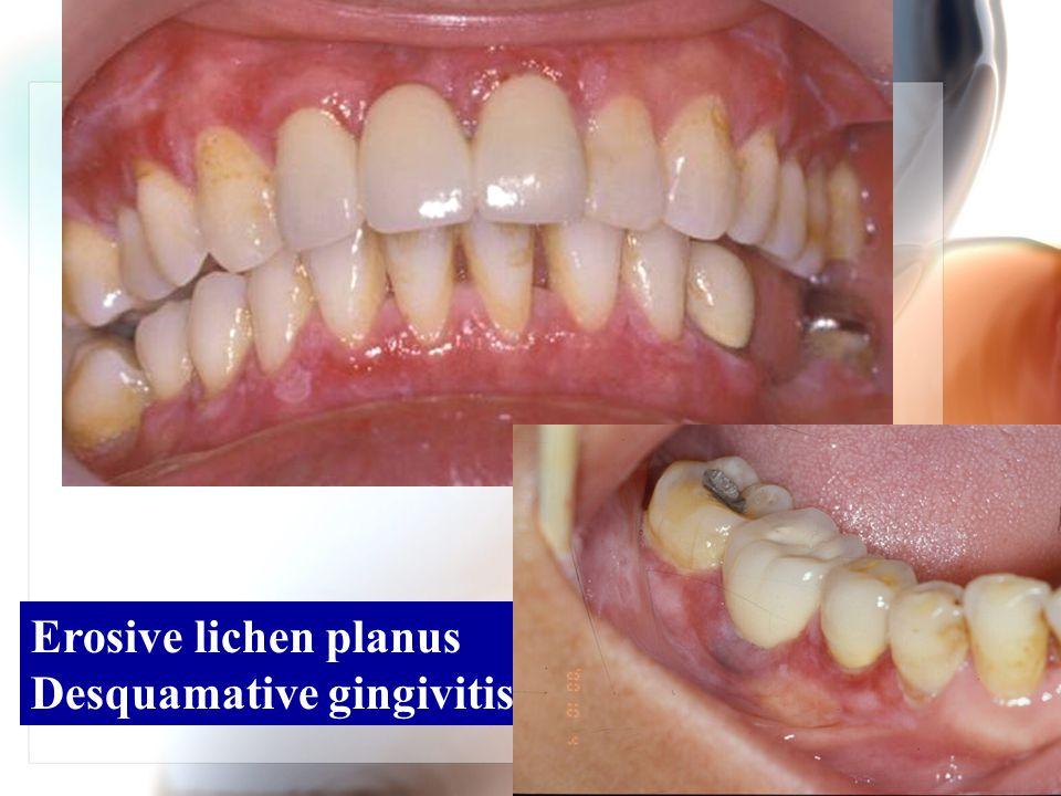 Erosive lichen planus Desquamative gingivitis