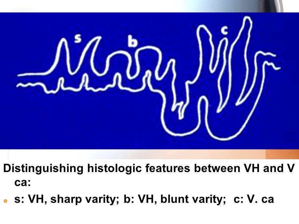 Distinguishing histologic features between VH and V ca: