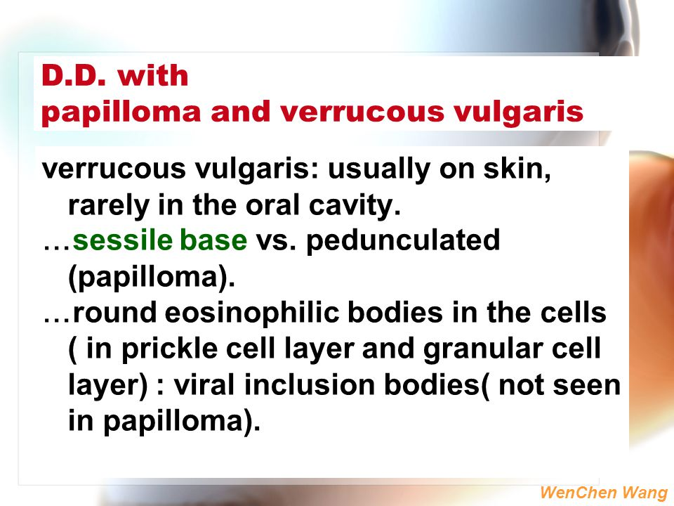 D.D. with papilloma and verrucous vulgaris