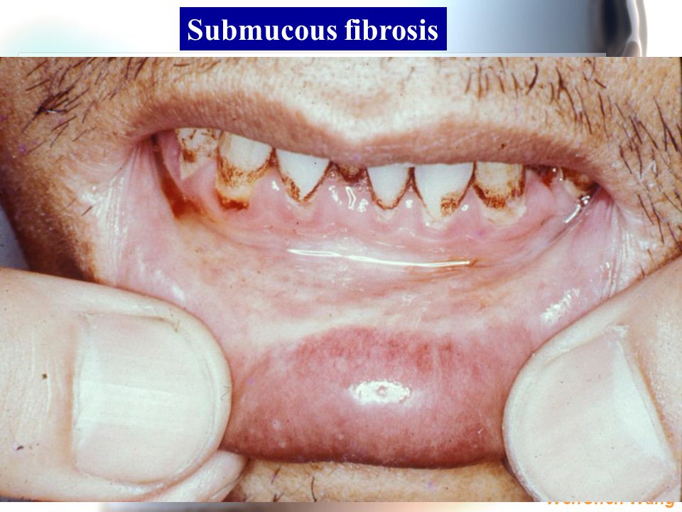 Submucous fibrosis