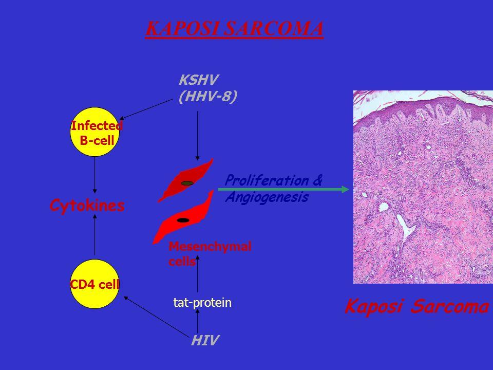 Kaposi Sarcoma KAPOSI SARCOMA Cytokines KSHV (HHV-8) Proliferation &
