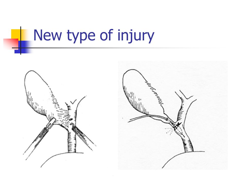 New type of injury